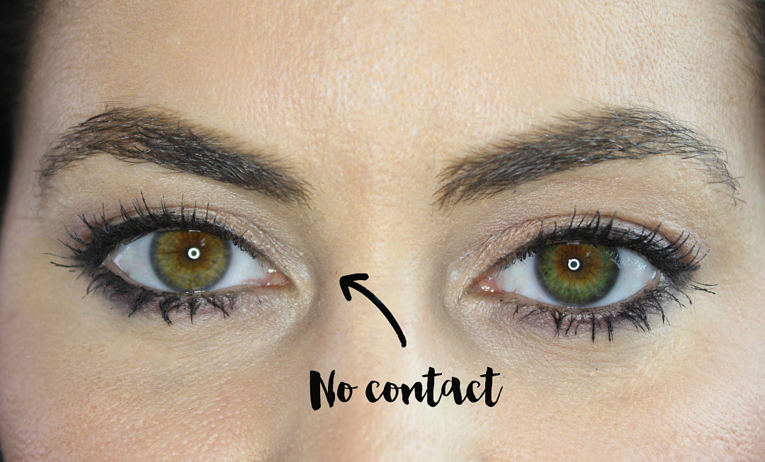 Definition Of Hazel Eyes - Astigmatism Glaucoma Swollen