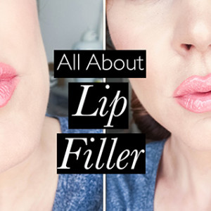 All About Lip Filler